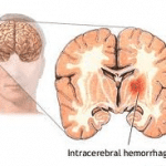 Intracerebral Hemorrhage – What Is It?
