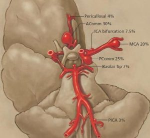 Cerebal aneurysms and PICA diagram