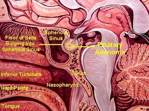 Pituitary Adenoma