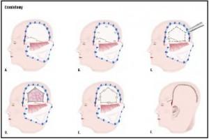 craniotomy procedure is brain tumor treatments