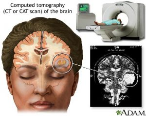 ct brain scan to show side effects of brain surgery