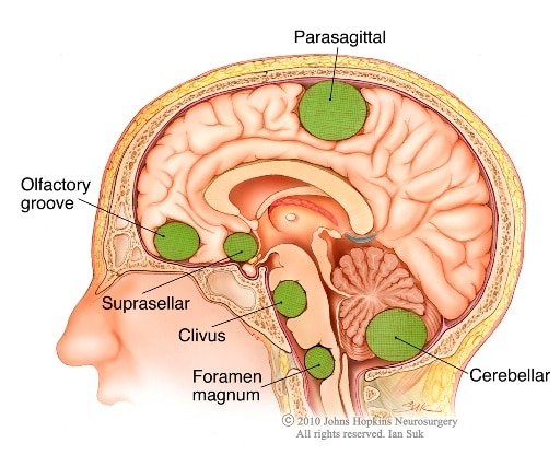 Foods to increase brain memory power picture 6