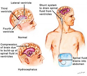 shunt placement in hydrocephalus another brain tumors treatments